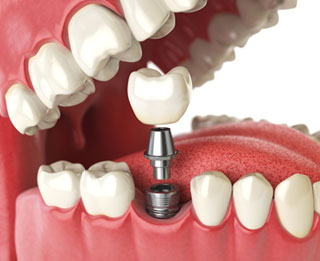 Dental Implants | Thornhill Family Dentistry