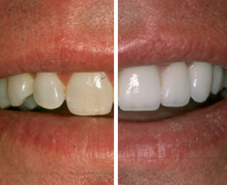 Teeth Whitening | Thornhill Family Dentistry