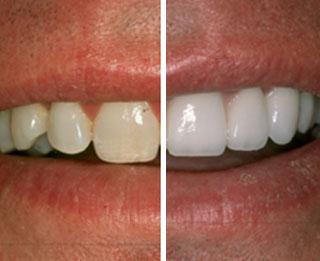 Teeth Whitening | Thornhill Family Dentistry