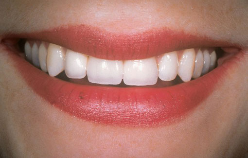 Dental-Implant-Thornhill Dentsit - After