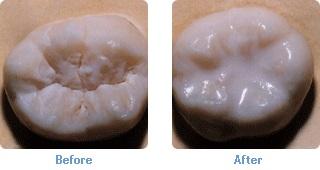 Dental Sealants - Thornhill Dentist - Procedural Diagram