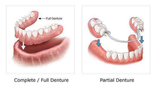 Full/ Partial Dentures| Thornhill Family Dentistry