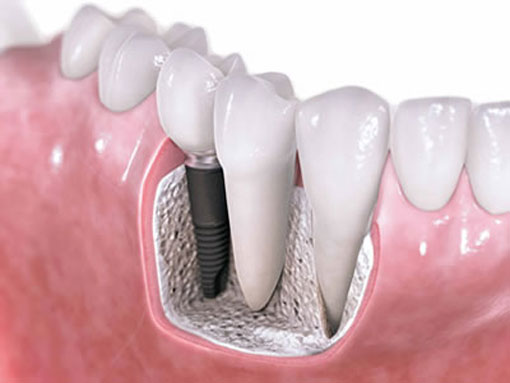 dental implants-thornhill dentist--illustration