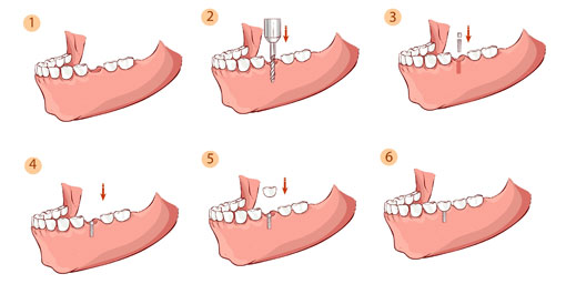 dental implants - thornhill dentist - Procedural steps