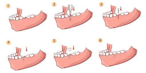 dental implants - thornhill dentist - Procedural steps