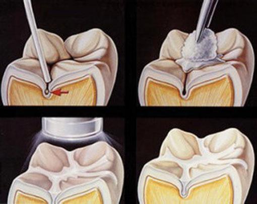 Thornhill Dentist - Dentist makes Digital Dental X-rays