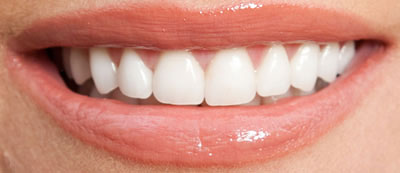 porcelain-veneers--thronhill-dentist--after
