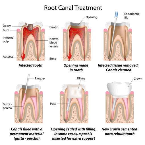 Root Canal Therapy - Thornhill Dentist - Stages of Treatment