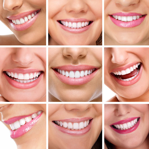 smile-test-thornhill-dentist-multiple people