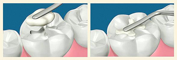 Thornhill Dentist-White Fillings - Application