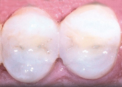 white-fillings - thornhill dentist -after