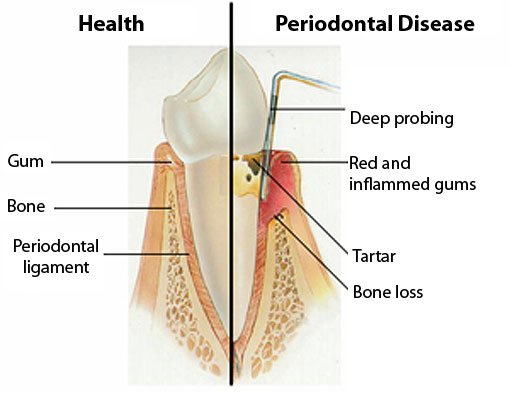 Periodontal Disease | Thornhill Family Dentist
